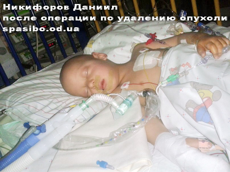 Даня сразу после операции по удалению опухоли. ФОТО 1