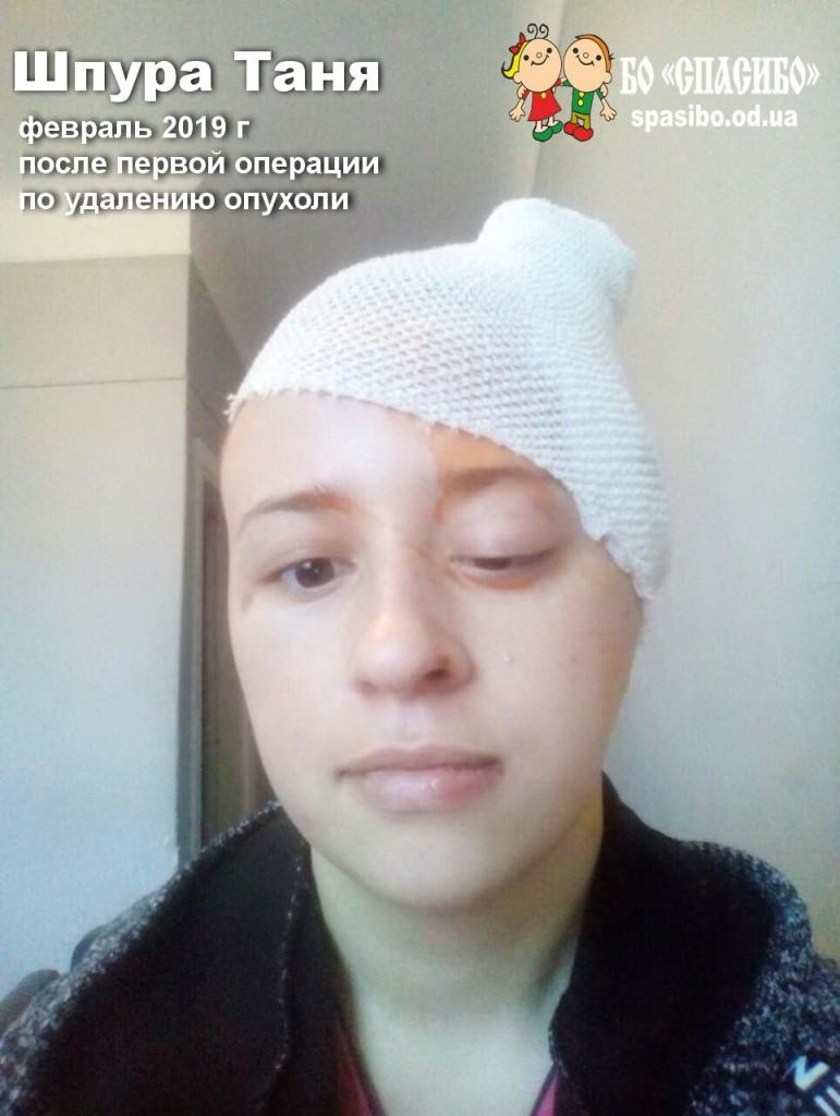 Февраль 2019 после первой операции